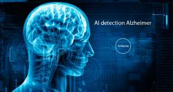 siliconreview-ai-early-detection-for-alzheimer-