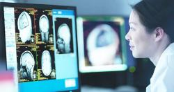 siliconreview-magnetoencephalography-scanners-to-make-brain-imaging-easier