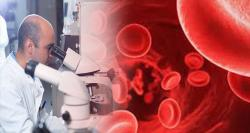 siliconreview-researchers-can-now-sort-blood-cell-data